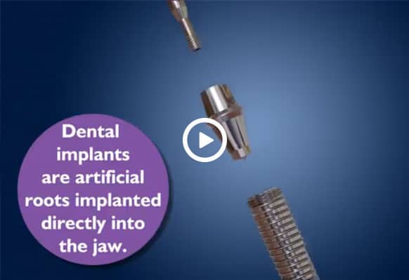 Dental Implants 01