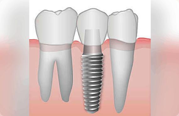 Dental Implants 02